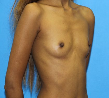 Breast Augmentation Before & After Patient #2679