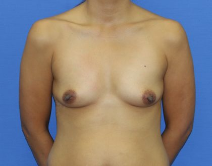 Breast Augmentation Before & After Patient #2686