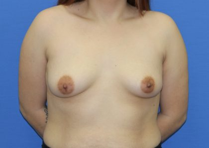 Breast Augmentation Before & After Patient #2728
