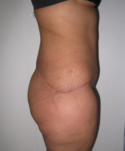 Tummy Tuck Before & After Patient #3380