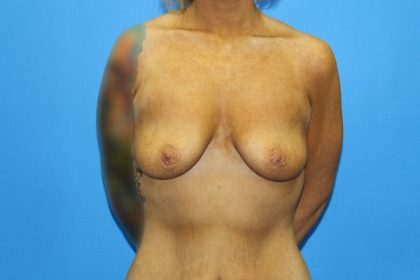 Breast Augmentation with Lift Before & After Patient #3027