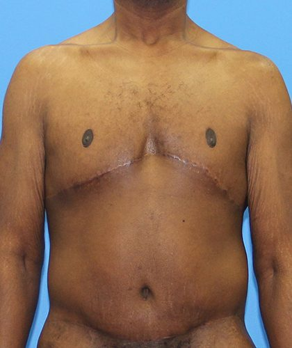 Gynecomastia Before & After Patient #2900
