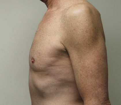 Gynecomastia Before & After Patient #2870