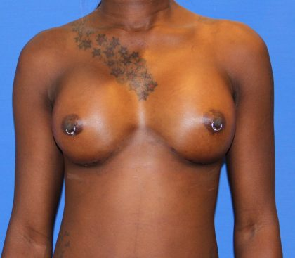 Breast Augmentation Before & After Patient #2742