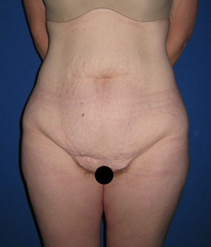 Tummy Tuck Before & After Patient #3172