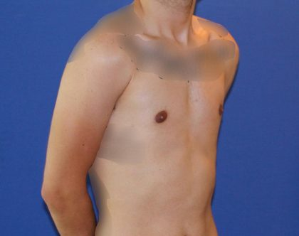 Gynecomastia Before & After Patient #2878