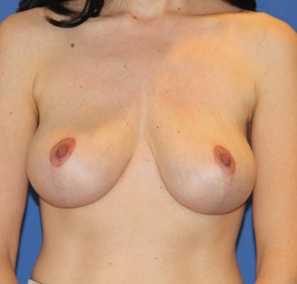 Breast Lift Before & After Patient #2791