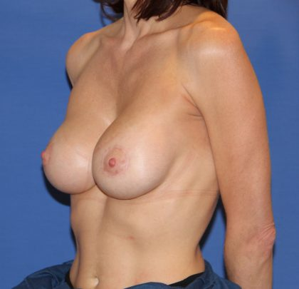 Breast Augmentation with Lift Before & After Patient #2931