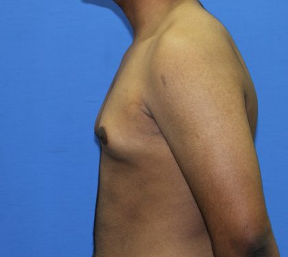 Gynecomastia Before & After Patient #2893