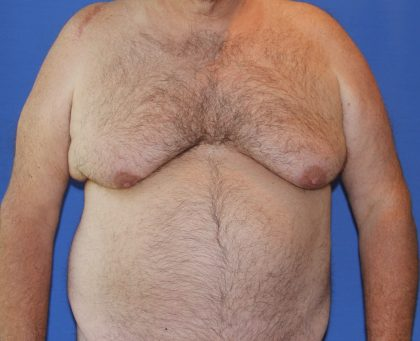 Gynecomastia Before & After Patient #2907
