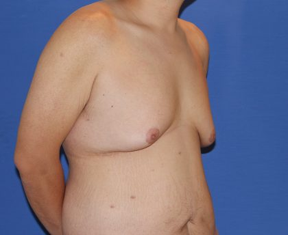 Gynecomastia Before & After Patient #2915