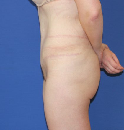 Tummy Tuck Before & After Patient #3401