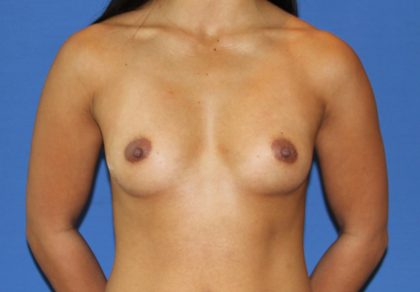 Breast Augmentation Before & After Patient #2646