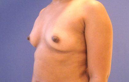 Breast Augmentation Before & After Patient #2735