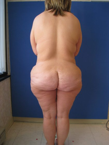 Lower Body Lift Before & After Patient #4017