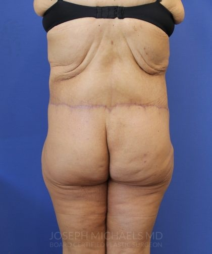 Lower Body Lift Before & After Patient #3986