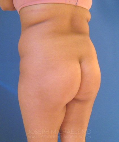 Buttock Augmentation Before & After Patient #3976