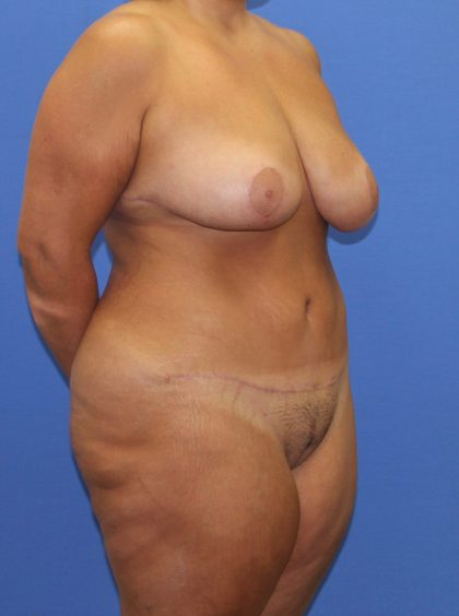 Tummy Tuck Before & After Patient #4170