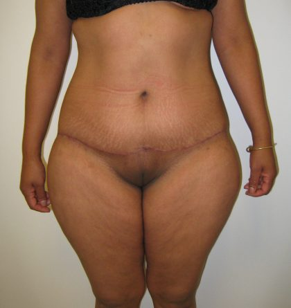 Lower Body Lift Before & After Patient #4044