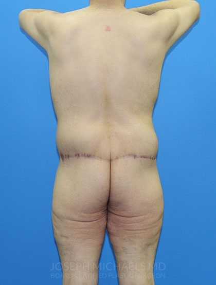 Lower Body Lift Before & After Patient #3997