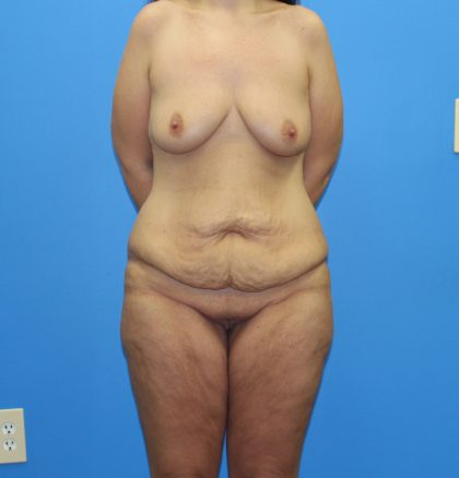 Lower Body Lift Before & After Patient #4028