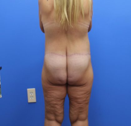 Lower Body Lift Before & After Patient #4059