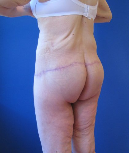 Lower Body Lift Before & After Patient #4068