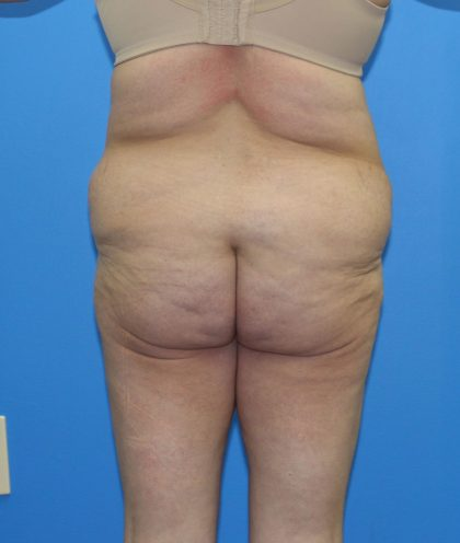 Lower Body Lift Before & After Patient #4079