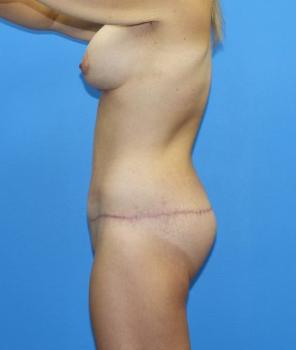 Lower Body Lift Before & After Patient #4088