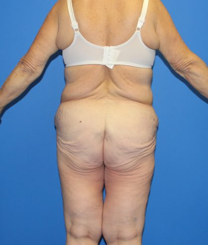 Lower Body Lift Before & After Patient #4106