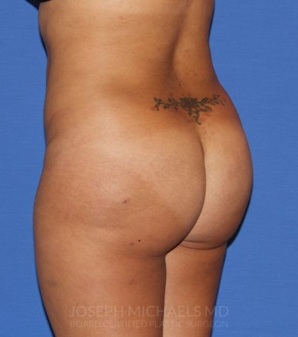 Buttock Augmentation Before & After Patient #3965