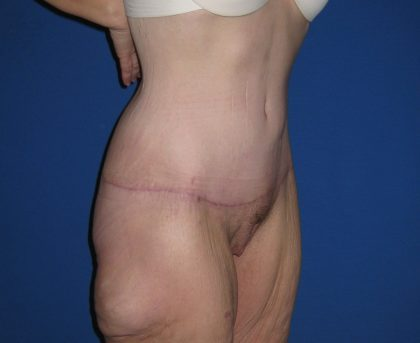 Extended Tummy Tuck Before & After Patient #4237