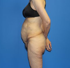 Extended Tummy Tuck Before & After Patient #4248