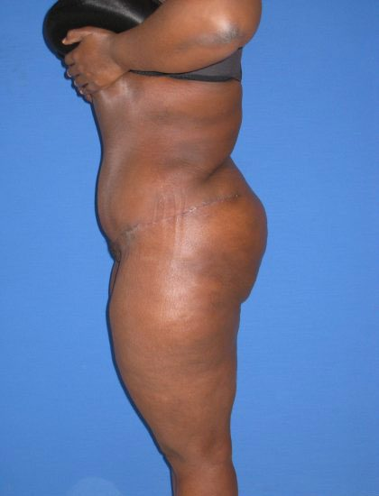 Extended Tummy Tuck Before & After Patient #4255