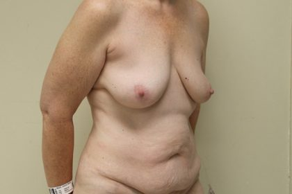 Breast Augmentation with Lift Before & After Patient #4265