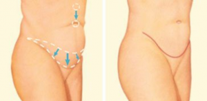 tummy tuck maryland